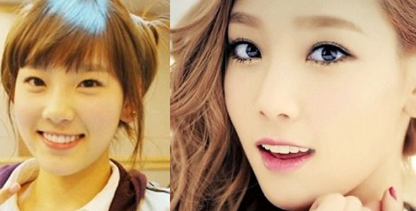 3 Amazing Korean Eye Surgery Before And After