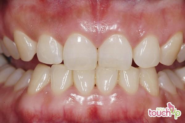 Cosmetic Gum Sculpting Gum Contouring Surgery Start